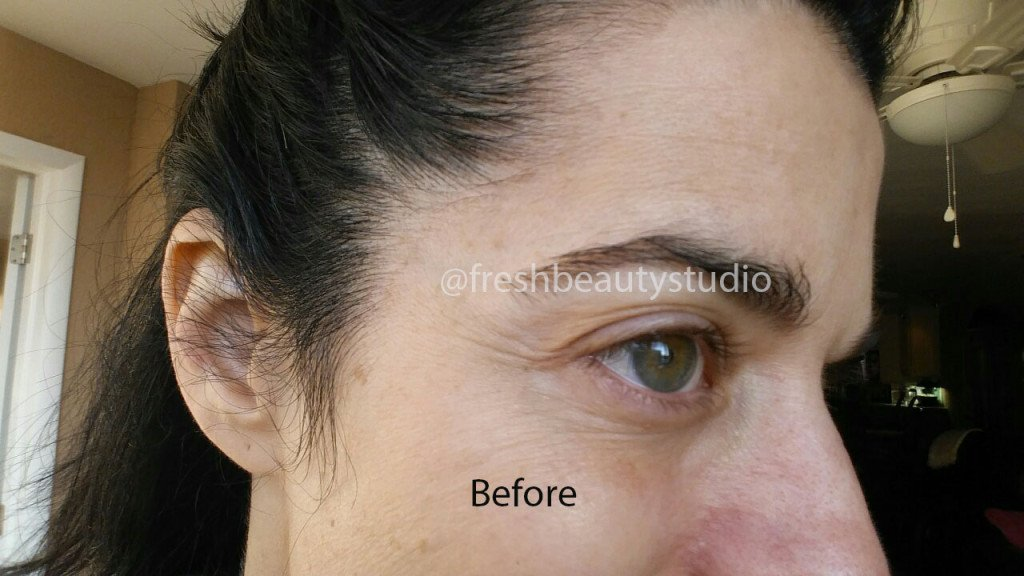 strivectin neck cream before and after